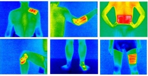 FAR Infrared Therapy