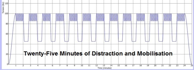 IDD Therapy 25 minute treatment graph