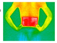 PW140-Lower-Back-Thermography-heat-only